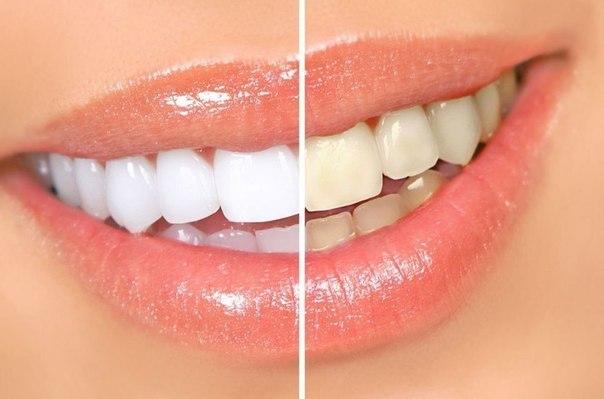 تبييض الأسنان بهذه الطرق لابتسامة واثقة وجذابة